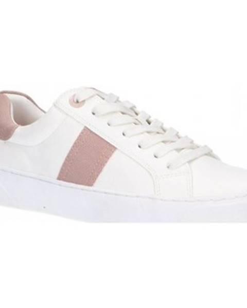 Ružové topánky MTNG